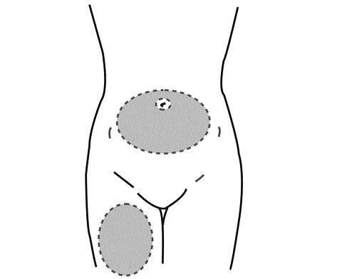 Choose the injection area. Avoid boney areas and the umbilicus.